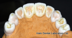 Palatal View of a Diagnostic Wax Up